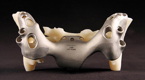 3d-systems-implants-case